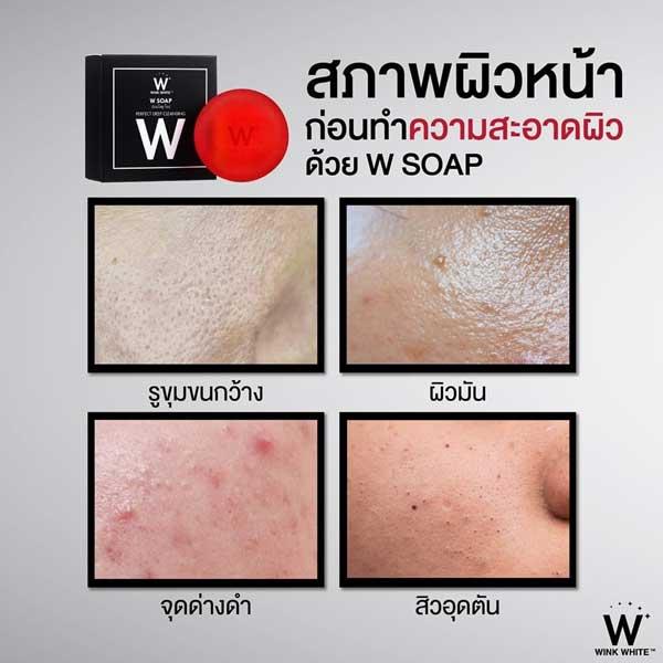w soap wink white สบู่ แดง วิ้งไวท์